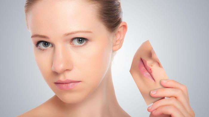 alimentos para evitar el herpes labial