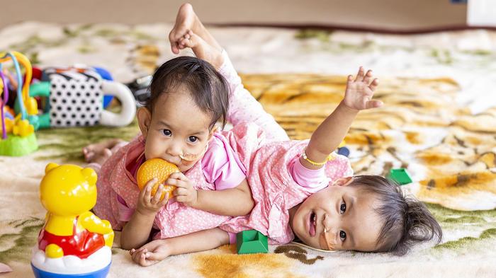 Nima y Dawa, gemelas siameses en East Kilmore