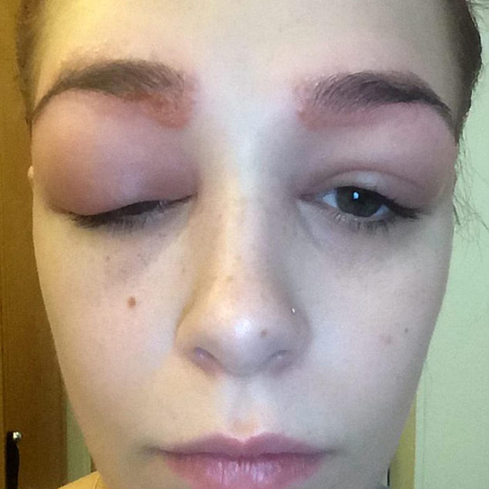 British Teen Suffers Dramatic Allergic Reaction To Eyebrow