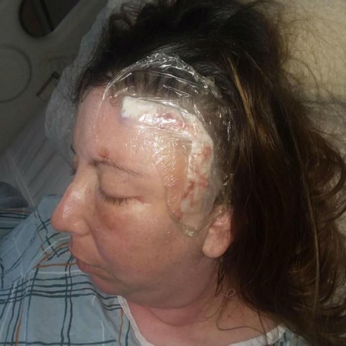 Rachel Palma tras su operación
