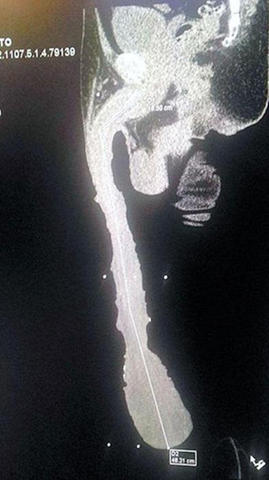 Rayos X de Roberto esquiel Cabrea, quien tiene el pene más largo del mundo