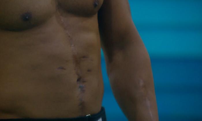 Cicatrices del habitante pedro en Gran Hermano