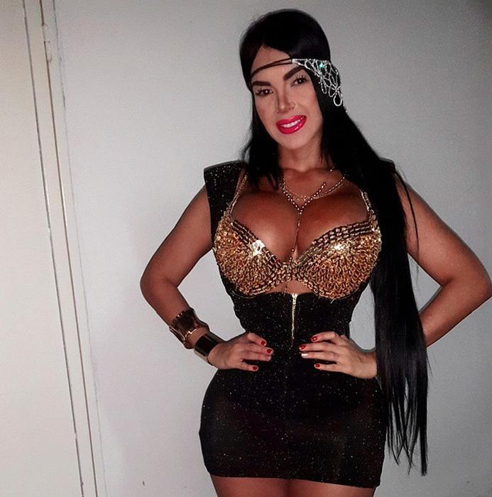 Aleira Avedaño usa un corsé 23 horas al día