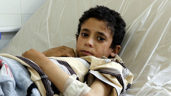 Niño en hospital de Yemen