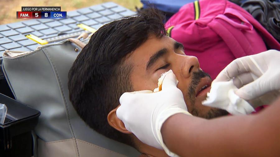 Jay es curado de un golpe en el rostro