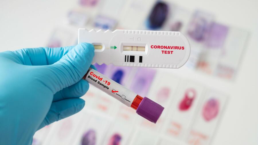 Pruebas de detección COVID-19