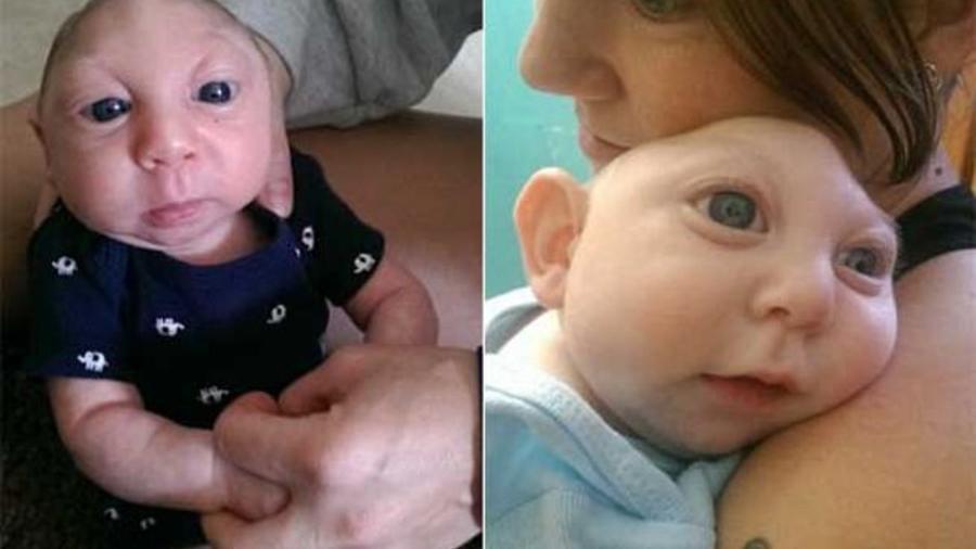 Jaxon Buell nació con una enfermedad y no tiene parte de su cerebro y su cráneo