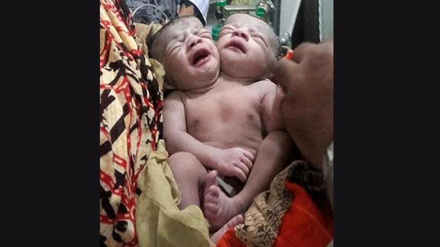 Niña con dos cabezas nace en Bangladesh