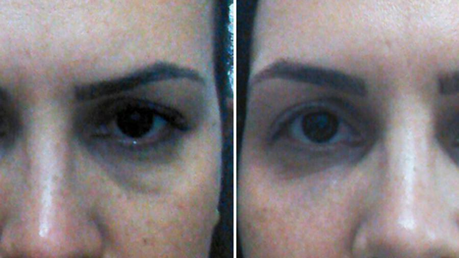 clienta con ojeras marcadas antes y después