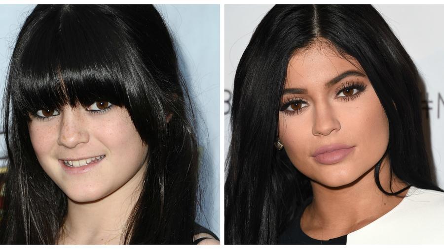 Antes y después de Kylie Jenner