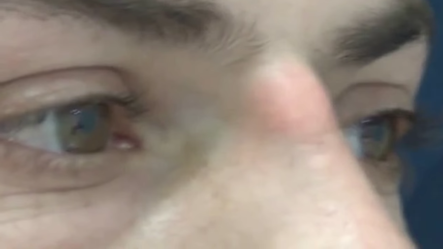 hombre con quiste entre los ojos