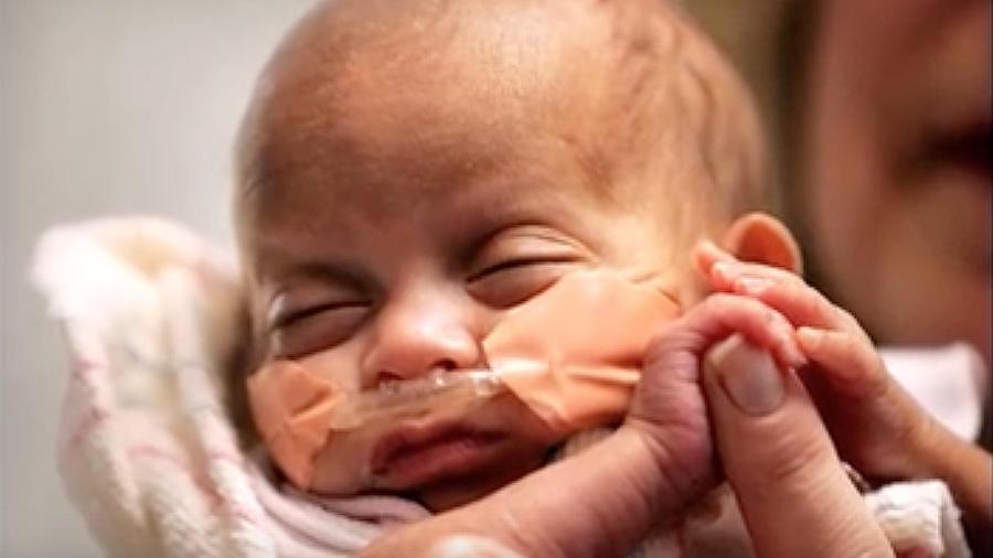 Bebé prematura en el hospital