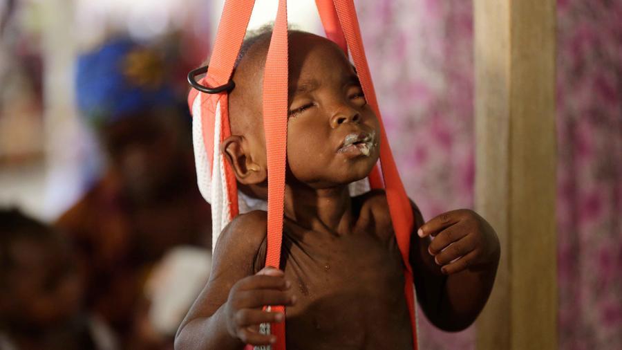 Niño afectado por hambruna
