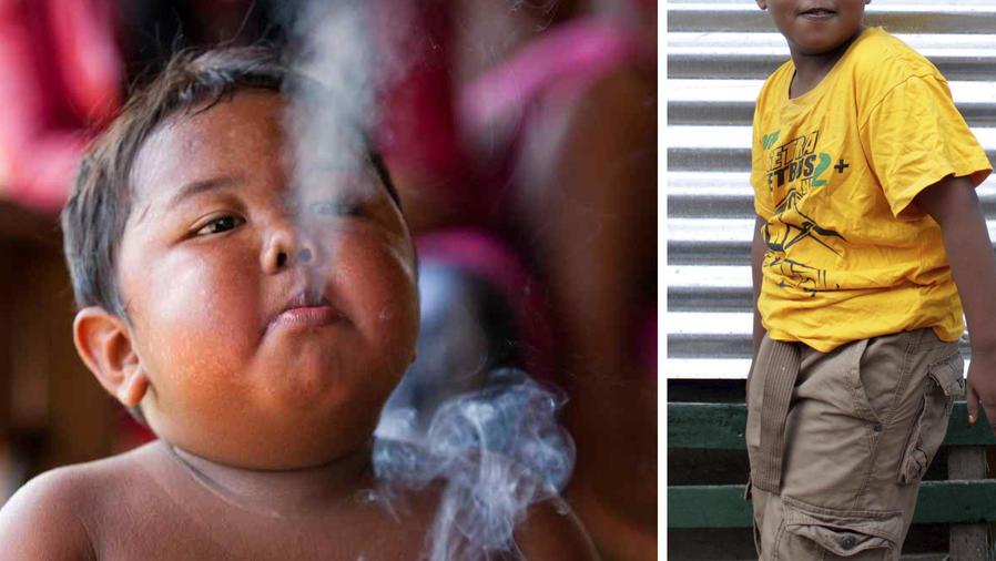 Así se ve el niño que fumaba decenas de cigarros al día