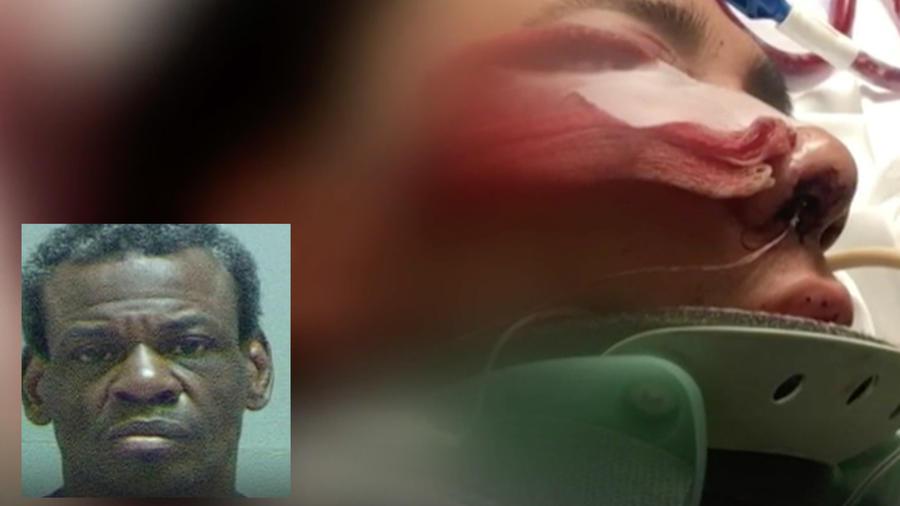 La víctima del ataque, e imagen del presunto agresor.