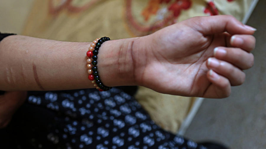 La imagen muestra las cicatrices ocasionadas tras varios intentos de suicidio.