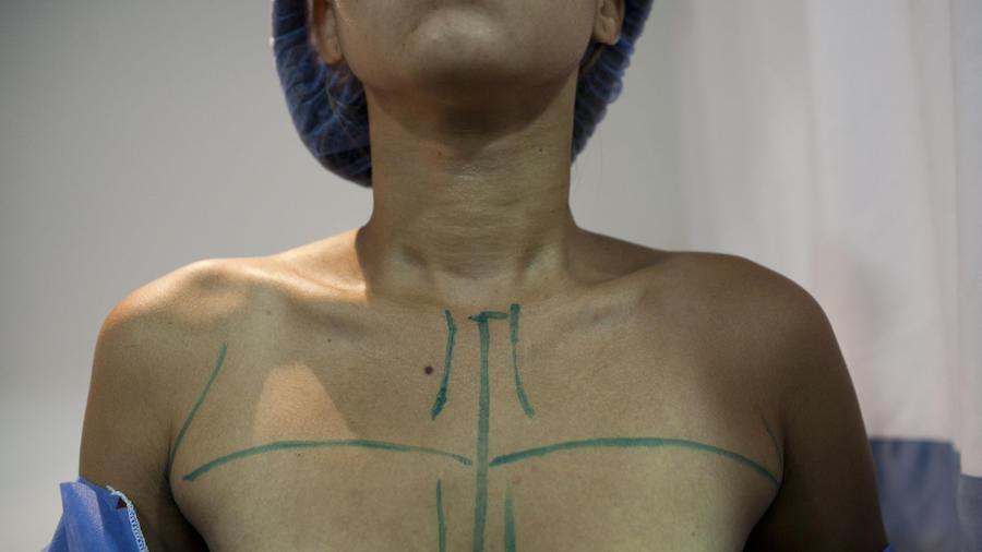 Imagen de archivo de una paciente preparada para una operación de aumento de pecho.
