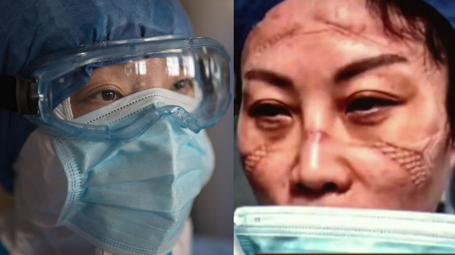 Enfermeras de China piden ayuda para batallar contra el Coronavirus