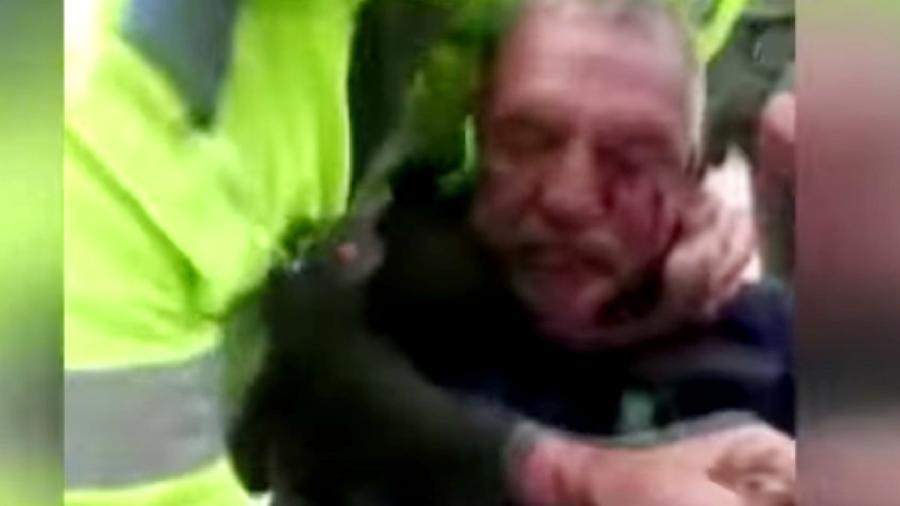 Anciano golpiza colombia policías