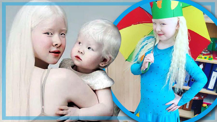 Hermanas albinas modelos