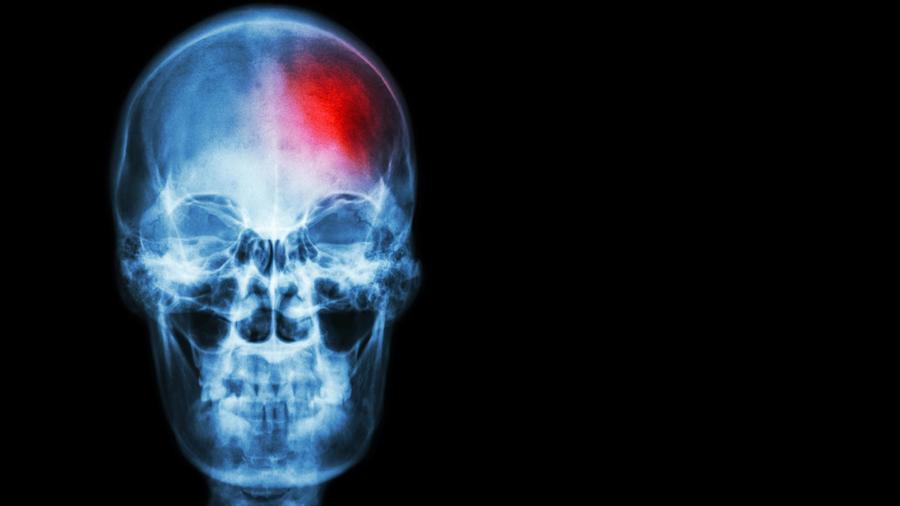 Radiografía de accidente cardiovascular