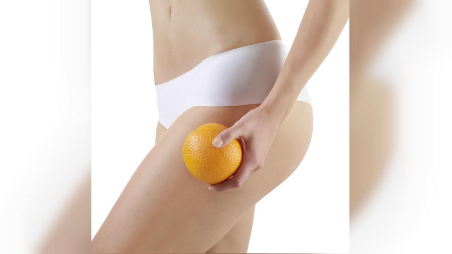 Mujer con piel de naranja