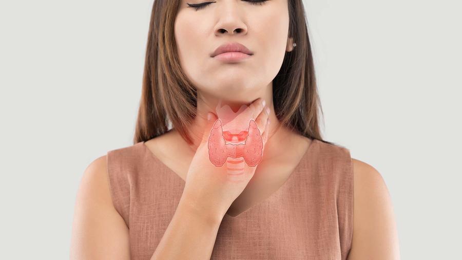 El hipotiroidismo
