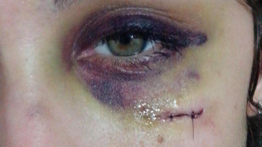 Foto de la cara deformada  de Nadia Rey que fue golpeada por su exnovio