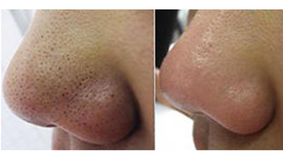 puntos negros en la nariz antes y despues