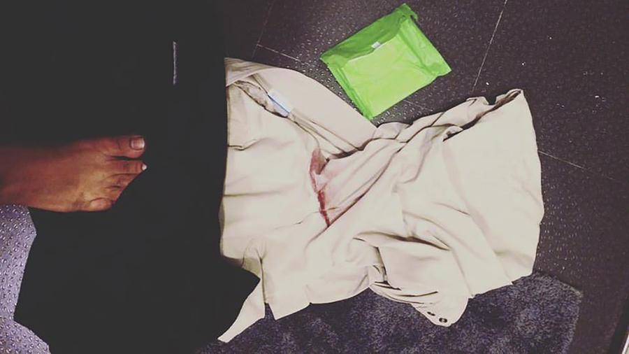 Ropa manchada con sangre junto a una toallita sanitaria