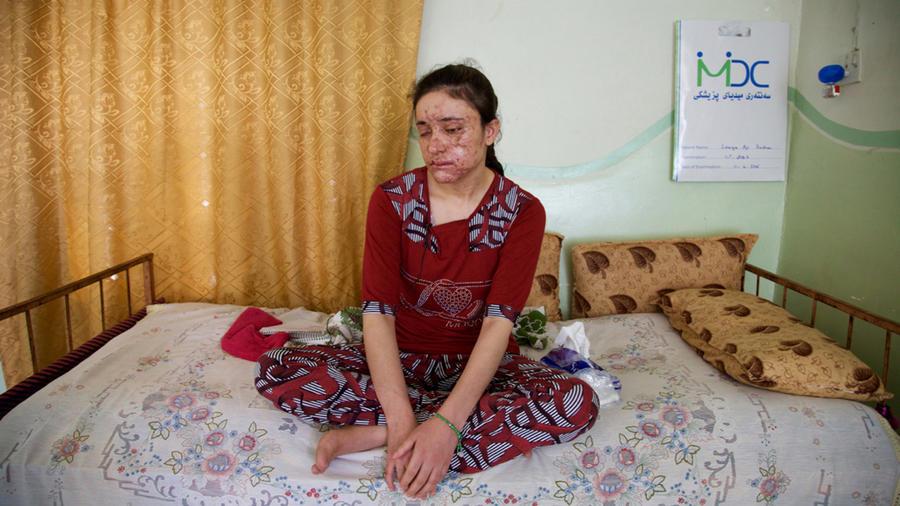 Lamiya Aji Bashar, una muchacha yazidi de 18 años que logró escapar a ISIS, fotografiada en el norte de Irak el 5 de mayo del 2016. Una mina terrestre que explotó cuando escapaba mató a dos compañeras y le desfiguró pero dice que valió la pena