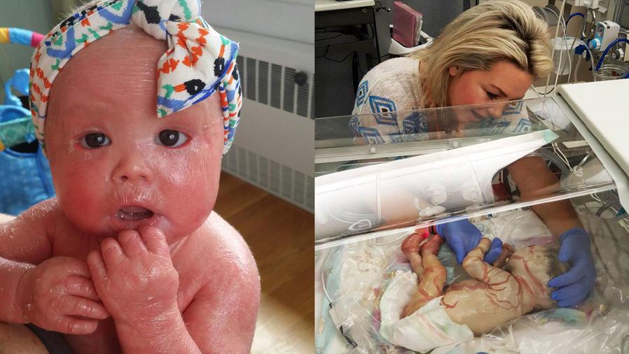 El extraño caso de la bebé que a la que se le descama la piel cada cuatro horas