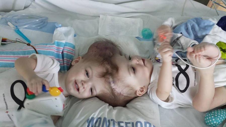 gemelos unidos cabeza