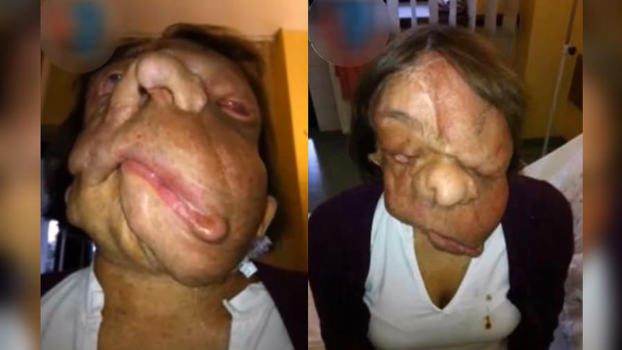 mujer tumor facial