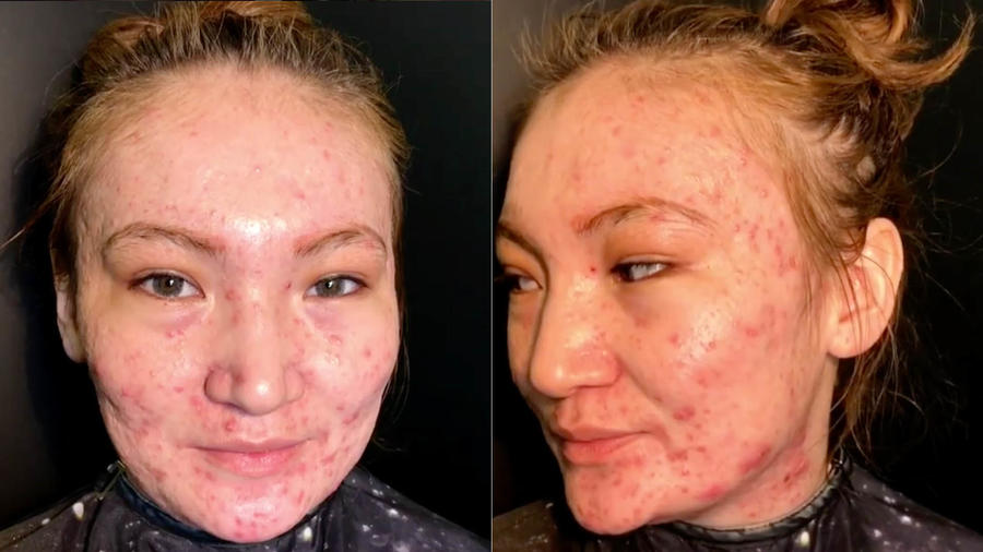 Mujer con acné severo