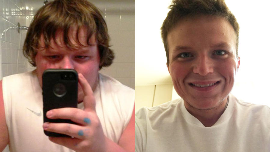 joven obeso pierde peso