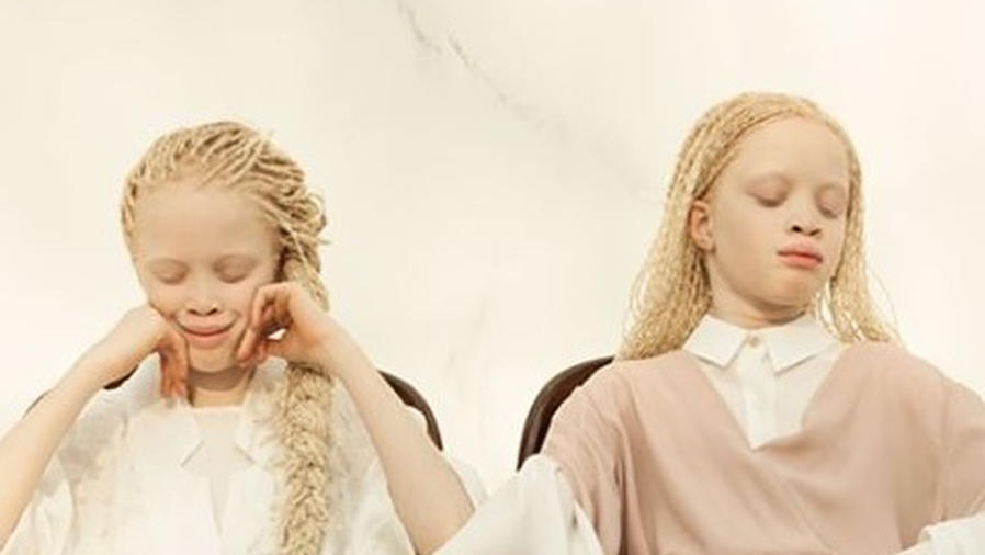Lara y Mara Bawar modelos albinas
