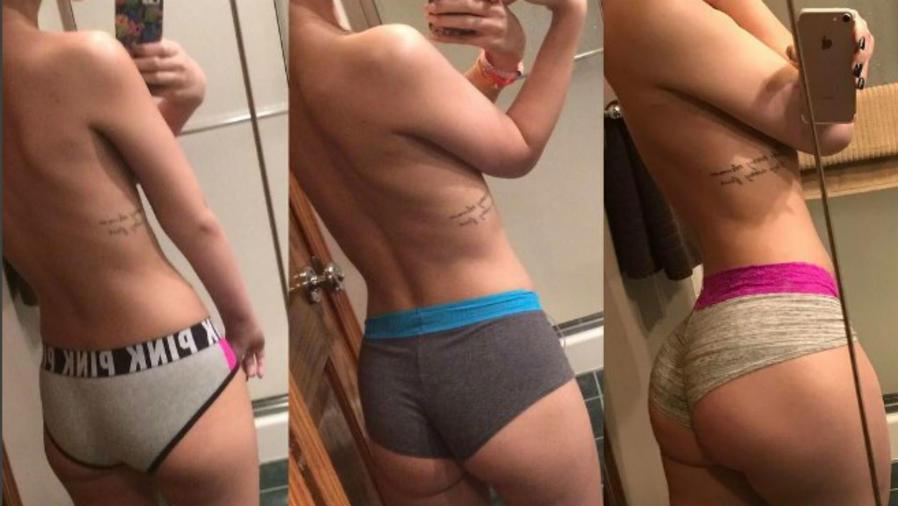 Transformación de una chica con cáncer