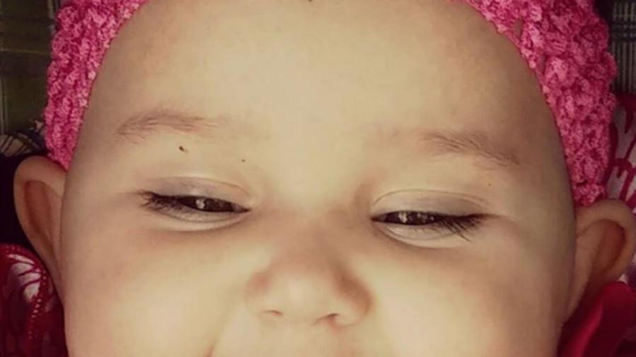 Bebé con piercing en la mejilla
