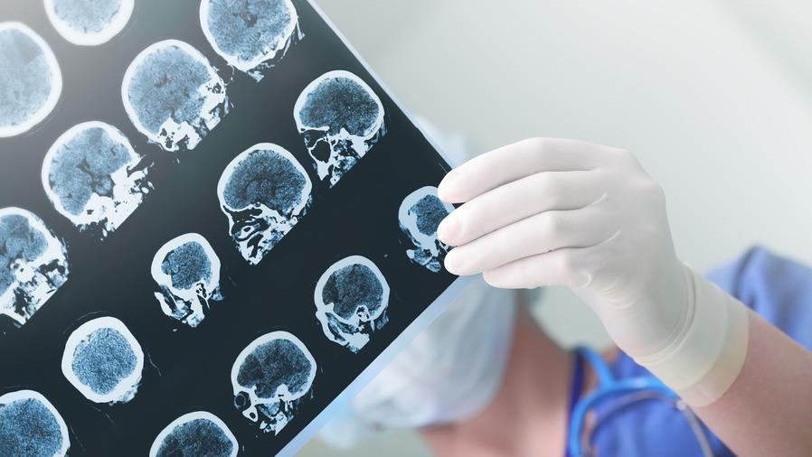 Profesional médica observando imágenes del cerebro