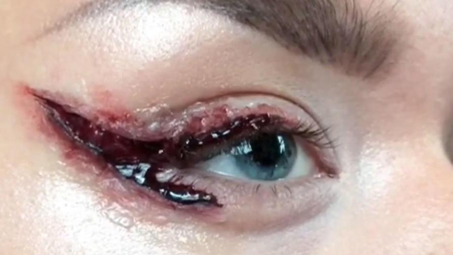 Raya sangrienta en el ojo es nueva tendencia en las redes sociales (VIDEO)