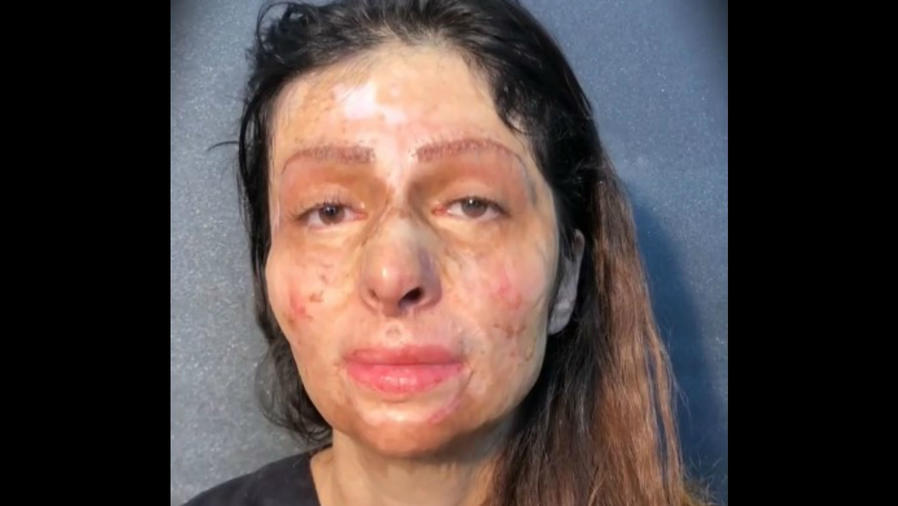 Mujer con el rostro desfigurado