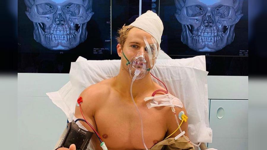 Sage Northcutt tras las fracturas masivas en su rostro