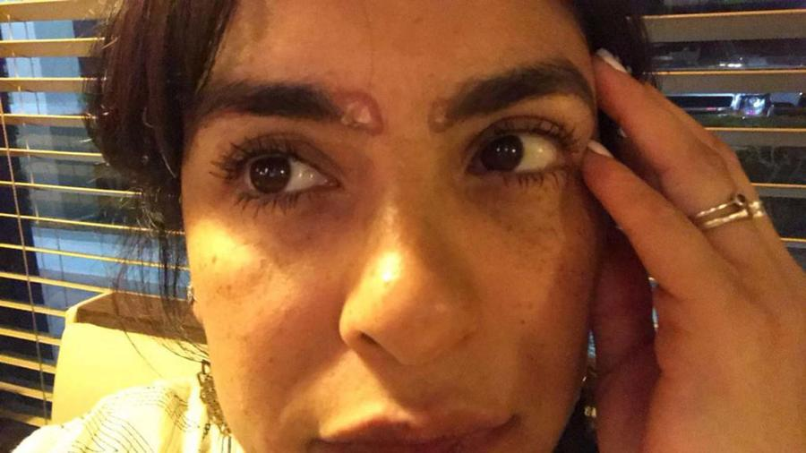 Liz Gallardo muestra las quemaduras en sus cejas