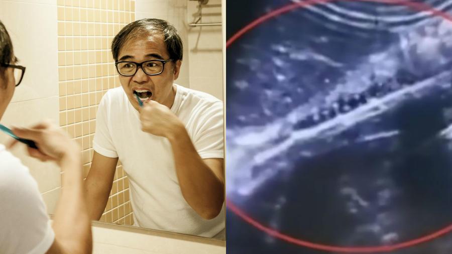 Accidentes con cepillos de dientes