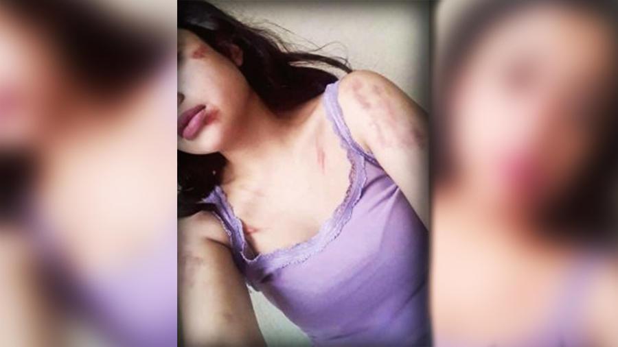 La joven luchó por zafarse de sus captores y lo logró, con algunas lesiones