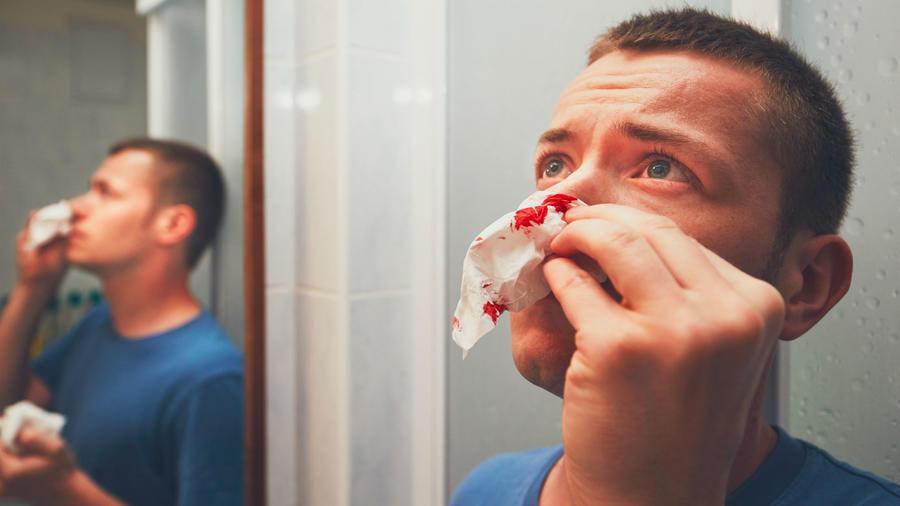 Hombre con hemorragia nasal