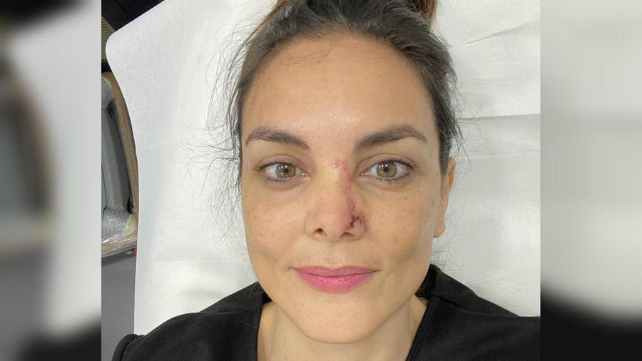 Mónica Carrillo mostrando su cicatriz
