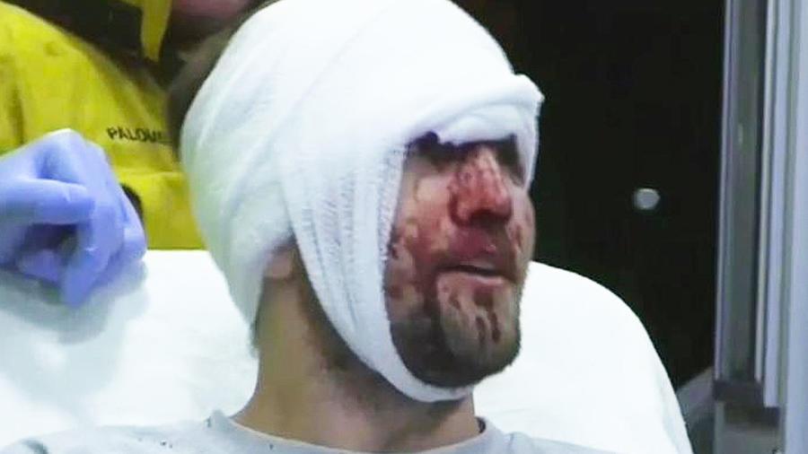 hombre golpeado en la cara
