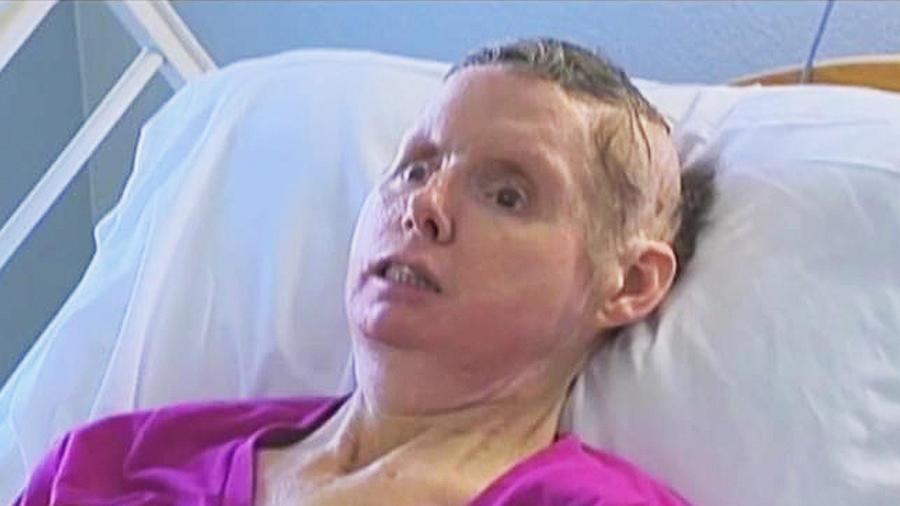 hospitalizan mujer trasplante de rostro